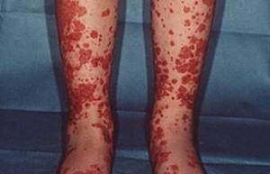 Кровоизлияния