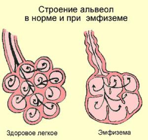 Альвеолы эмфиземы легких
