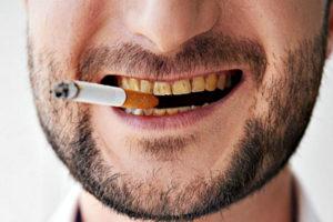 Kak viglyadyat zubi kurilschika
