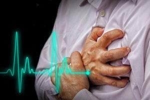 infarkt miokarda