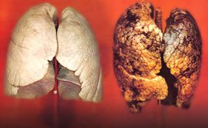 Vliyanie tabaka na lYogkie