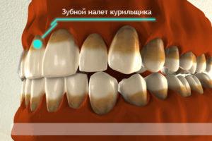 tabachnii sloi na zubah u kurilschikov
