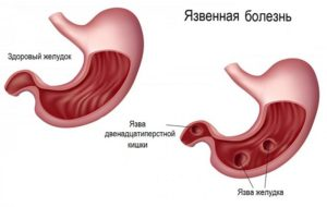 bolezni jeludka