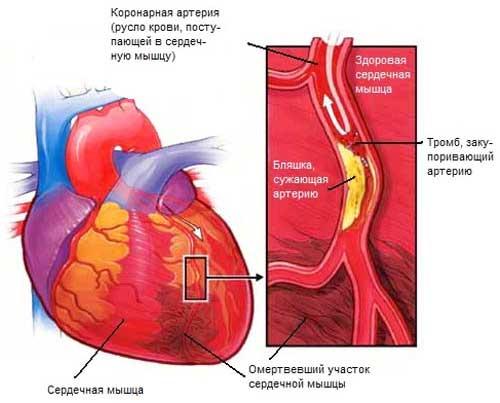 Инфаркт как причина недостаточности