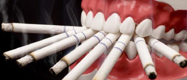 Sostoyanie zubov kurilschika