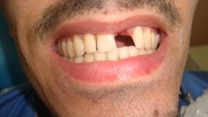 Зубы от курения фото