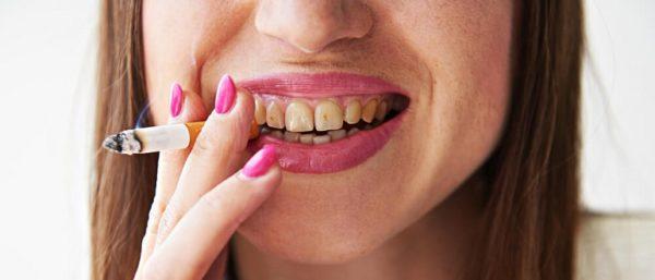 Kak ochistit zubi ot nikotina v domashnih usloviyah