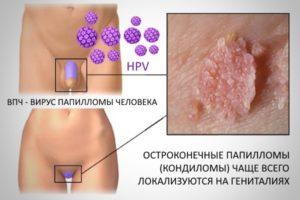 Virus papillomi cheloveka