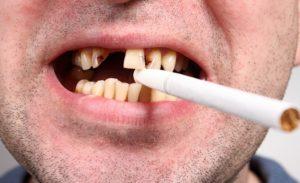 ischeznovenie problem s zubami